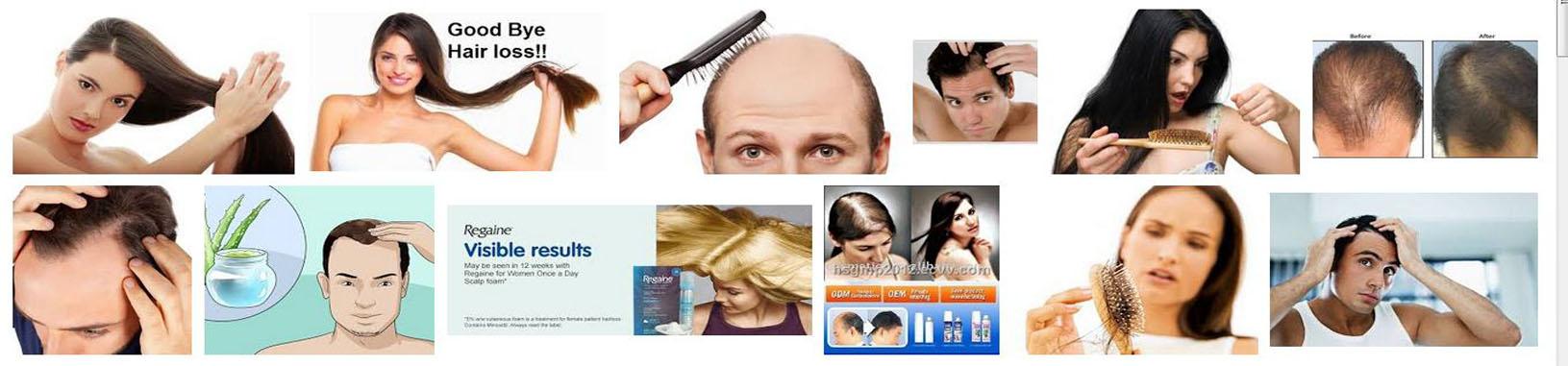 Hair Loss Treatment Reviews